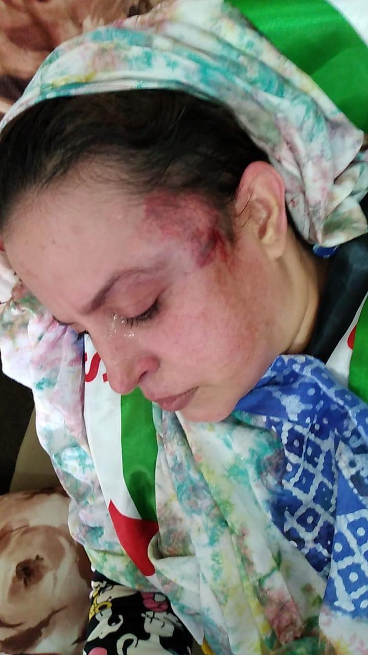 LLAMAMIENTO URGENTE PARA PROTEGER A LA POBLACION CIVIL SAHARAUI EN LAS ZONAS OCUPADAS DEL SAHARA OCCIDENTAL